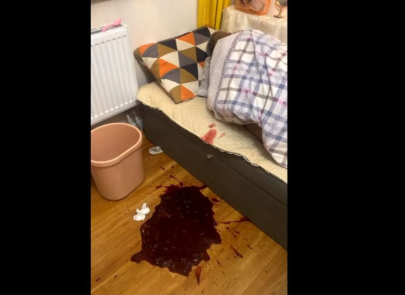 Ковидоор өвчилсөн хүн гэртээ эмчилгээ хийлгээгүйгээс хүндэрч, цусаар бөөлжжээ