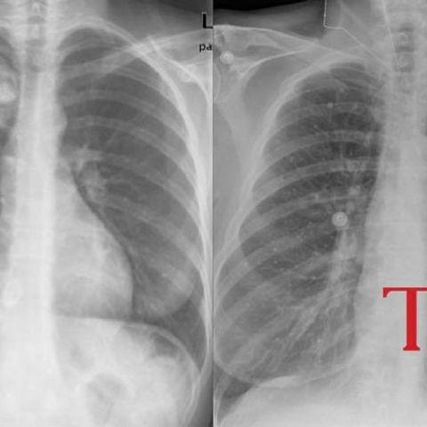 ХӨСҮТ: Ковидын дараа иргэдийн уушгийг үнэ төлбөргүй рентгенд харж байна
